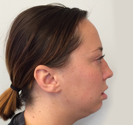 Corrective Jaw Surgery Riverwoods Oral Surgery